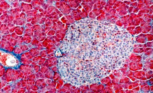 Бета клетки